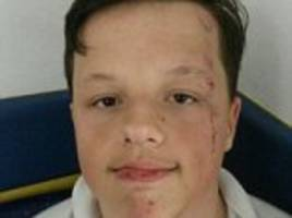 swansea boy needed stitches after attack by 7 other pupils