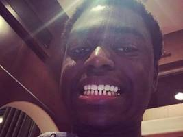 """kodak black melts the ice, shows off his fresh teeth: """"pulling my golds out"""""""
