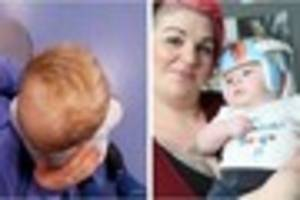 hucknall mum whose baby has flat head syndrome says more help...
