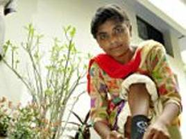 woman has surgery on her club foot in india