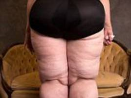 mother-of-two has 26 pints of fat drained from her legs