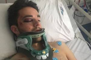 andy little says he is glad he doesn't recall horror injury that left him with fractured skull