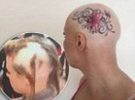 kettering mother with alopecia tattoos her head