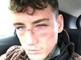 jeremy mcconnell has broken nose and fractured eye socket