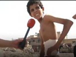 injured iraqi boy 'hid in a mosul basement for 20 days'
