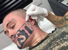 New Zealand man with huge 'DEVAST8' tattoo gets it removed