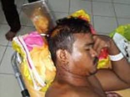 cambodian man left with meat cleaver embedded in his skull