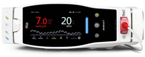 masimo announces ce marking of noninvasive rpvi™, a rainbow® multi-wavelength index of pleth variability