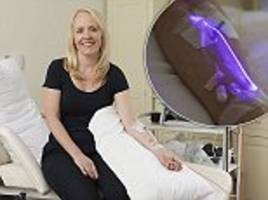 the anti-ageing laser that lights up your arm