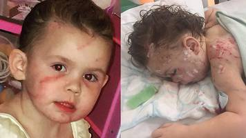 'My three-year-old niece was attacked by five dogs'