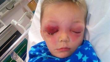 cardiff boy, four, contracts 'horrific' flesh-eating bug