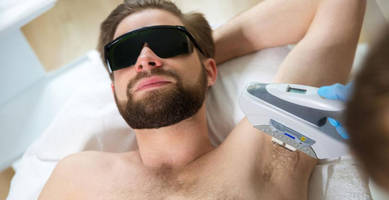 uc-berkeley adds laser hair removal to student health plan