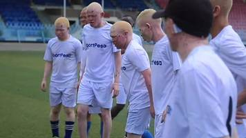 Tanzania's albino footballers team up with Everton FC