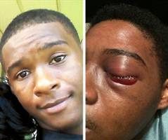 toronto chief calls in waterloo police to investigate beating:off-duty toronto officer and brother charged; whitby teen will lose an eye