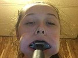 louisiana teen gets a hammer stuck in her mouth