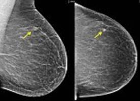 Revealed, how breast density is key to cancer
