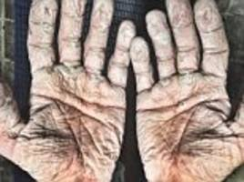 olympic rower posts jaw-dropping picture of wrinkly hands