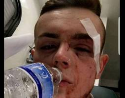 north somerset man sentenced for 'nasty assault' on teenager on park street but cleared of homophobic allegations