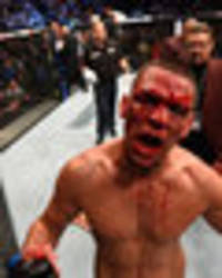 Conor McGregor doesn't stand a chance against a fully fit Nate Diaz, says coach