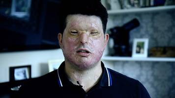 hell in a bottle: i survived an acid attack