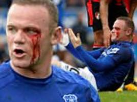 wayne rooney suffers gruesome eye injury vs bournemouth