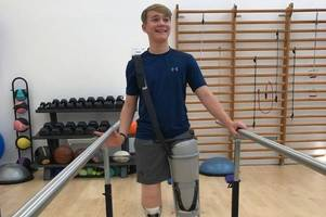 crash victim billy monger shares poignant pictures of recovery after losing both legs