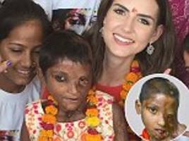 miss universe gb 2017 meets acid attack victim, 7