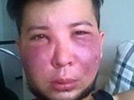 colombian man's face is rotting following botched surgery