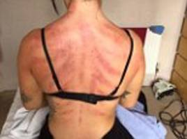 can you guess the job that gave a woman these injuries?