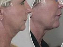 treatment for double chins without going under the knife