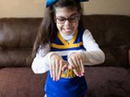 Photos feature lives of kids with rare genetic conditions