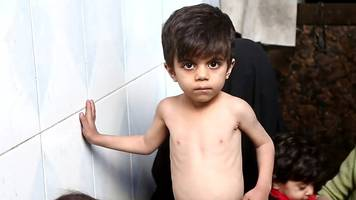 syria conflict: siege leaves children starving near damascus