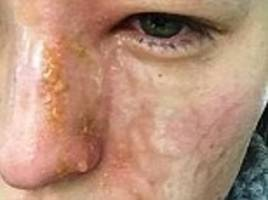 woman horrifically burned by plug-in perfumed oil diffuser