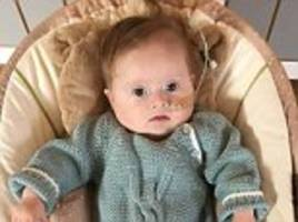 nhs staff let parents of down's syndrome girl down