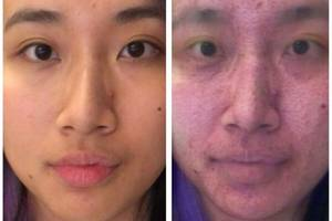 I used a makeup removal app repeatedly to turn into an acne-covered zombie