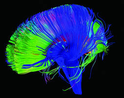 Neuroscientists Are Trying to Alter Our Brain Circuits to Eradicate Pain