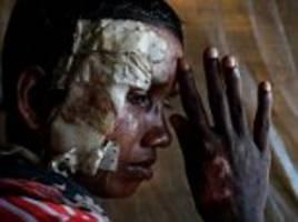 Harrowing pictures show injured Rohingya refugees