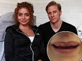 model is left with bizarre lumpy lips after botched job