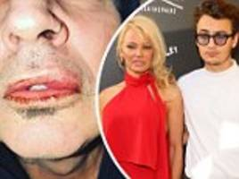 tommy lee 'lunged' at son who was 'defending' mom pamela anderson