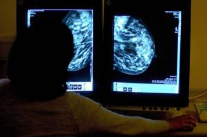 breakthrough as nhs scotland approves use of new drugs to treat breast cancer and hodgkin's lymphoma