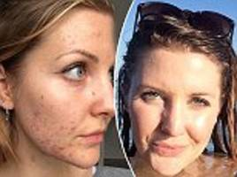 brighton blogger says giving up sugar cleared her acne