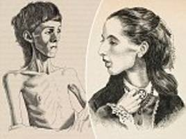 Images of Britain's FIRST EVER anorexia sufferers resurface