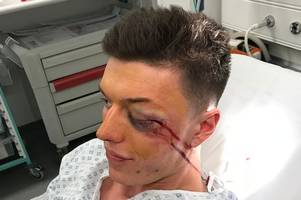 man left needing facial surgery after unprovoked assault at cheltenham festival
