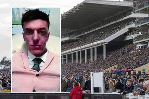 cheltenham festival victim nearly blinded after being picked on for 'wearing a pink suit'