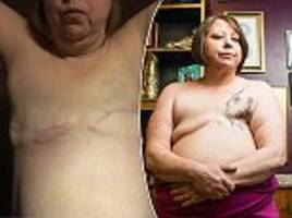 Breast cancer survivor sees her mastectomy tattoo for the first time