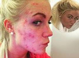 'i'm getting my life back': woman bullied for years because of acne swears by skin cream with silver