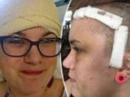woman was wide awake during 10-hour brain surgery