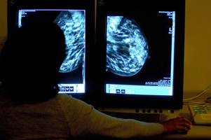 Easier breast cancer screening for thousands of women with new mobile unit