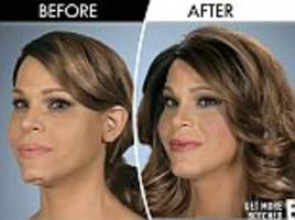 transgender mariah carey impersonator has her dented chin fixed by tv surgeons