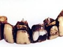 hitler's teeth were in bad condition and prove conspiracy theories are not true
